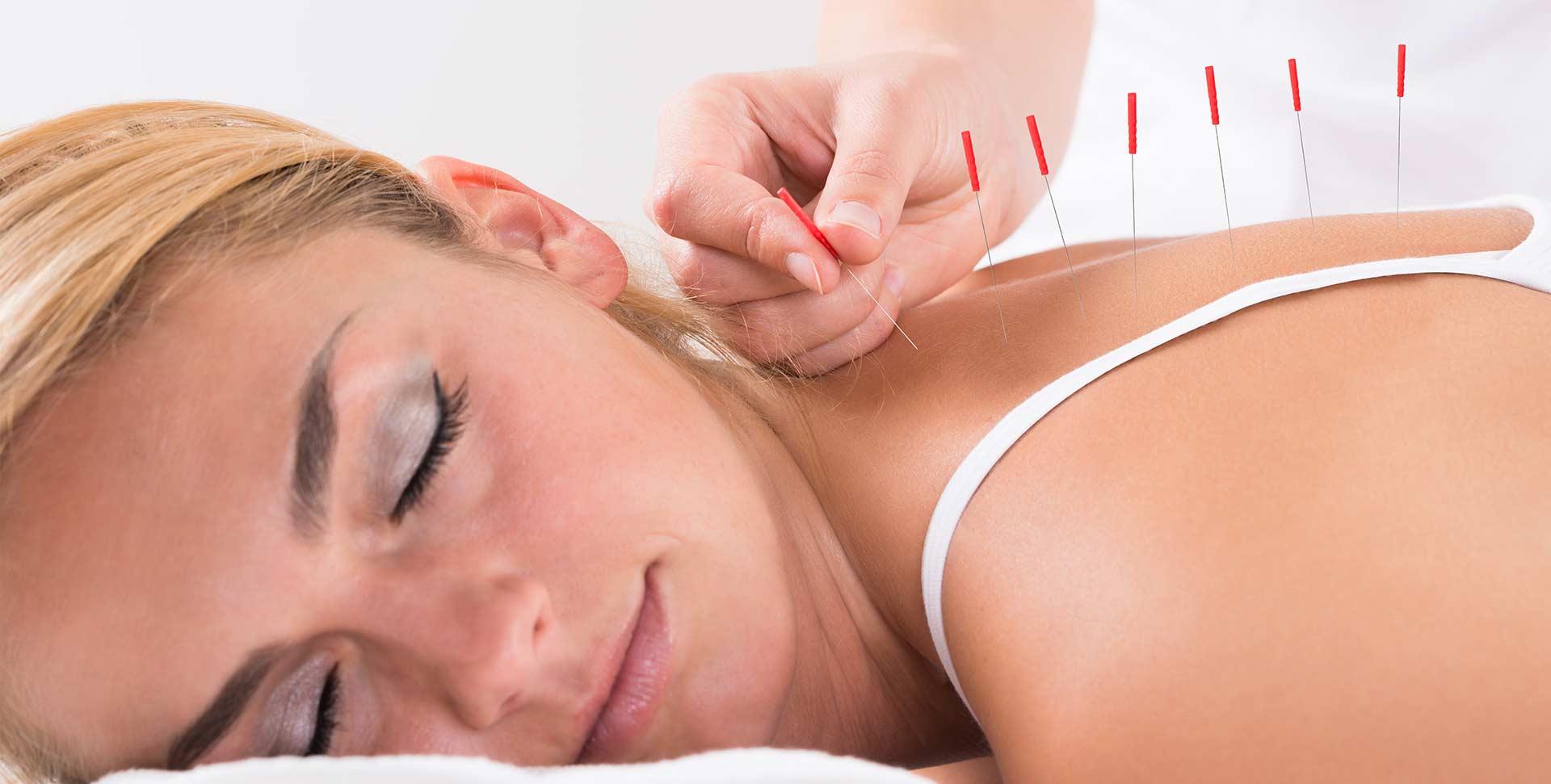 Healing Hands Wellness | Okotoks Acupuncture