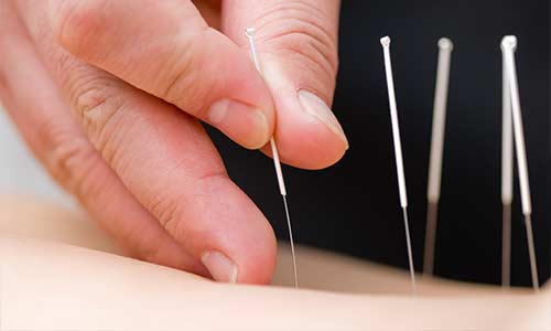 Healing Hands Wellness | Okotoks Acupuncture